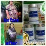Obat herbal pelangsing perut